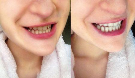 Le charbon est très efficace pour blanchir les dents