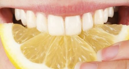 Certes, le citron blanchit les dents, mais en même temps il les fragilise