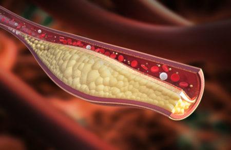 Les mauvais cholestérols bouchent les vaisseaux sanguins